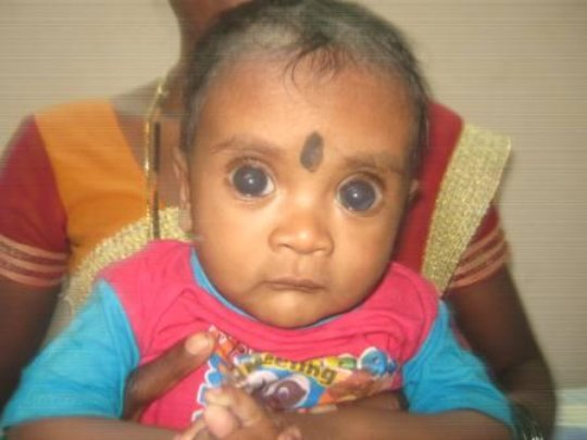 7 mths old baby examined for congenital glaucoma