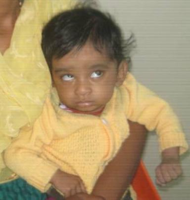 8 months old baby operated for lens opacities