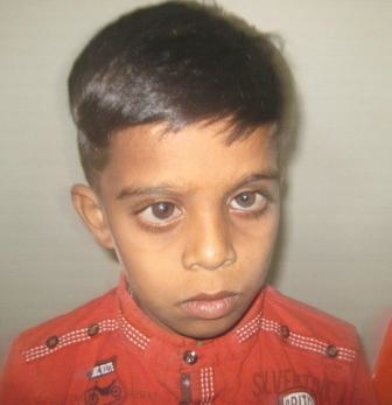child operated for childhood glaucoma
