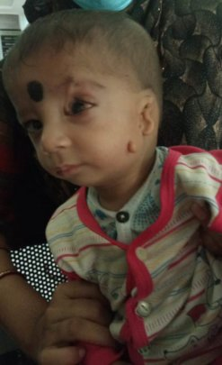 9 months old child operated for medial coloboma