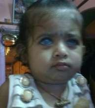 1 YR OLD GIRL CHILD OPERTD FOR ANIRIDIA + GLAUCOMA