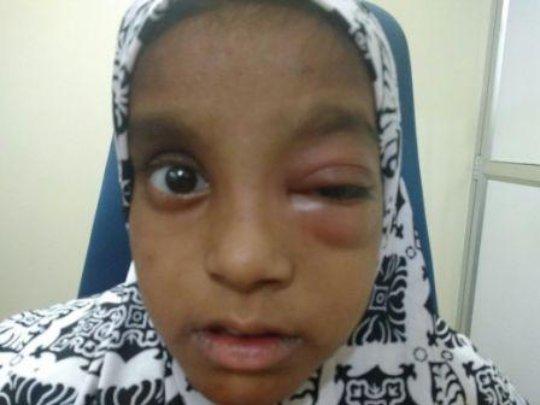 female child operated for orbital cellulitis