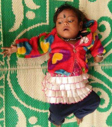 child operated for congenital cataract