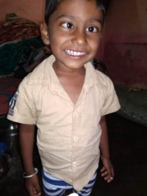 4 yr old boy before squint surgery