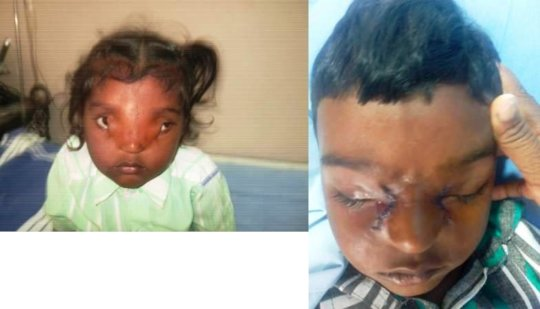 4 yr old operated for rare eye condition