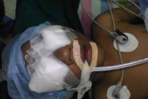 3 YR OLD BOY OPERATED FOR CONGENITAL CATARACT
