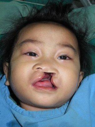 Chelsea Joy Casipit Before Smile Train Surgery