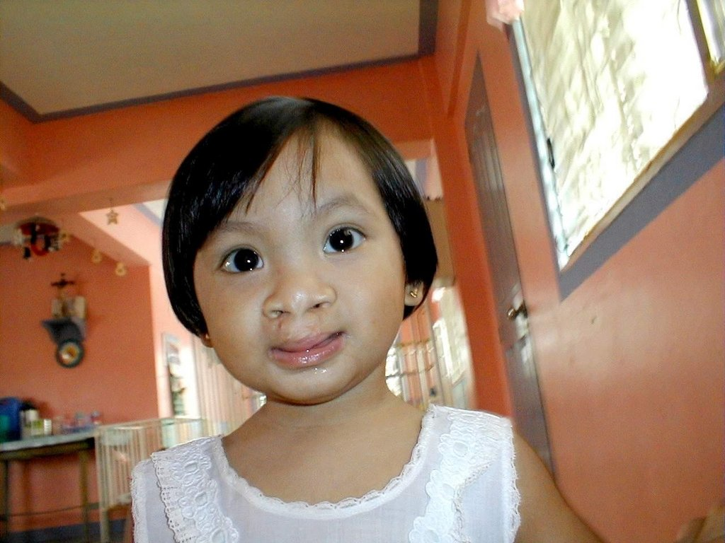 Free Cleft Surgery for 400 Filipino Children
