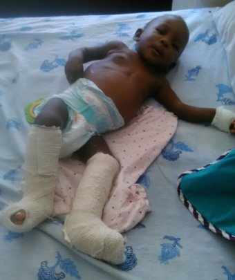 Baby Aviguel in hospital
