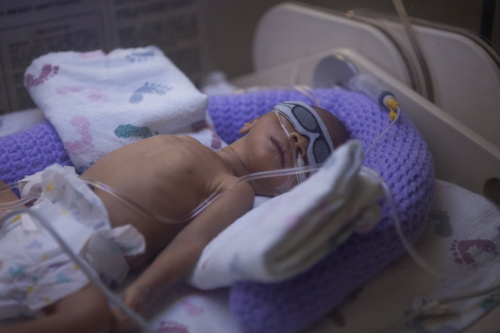 baby in neonatal