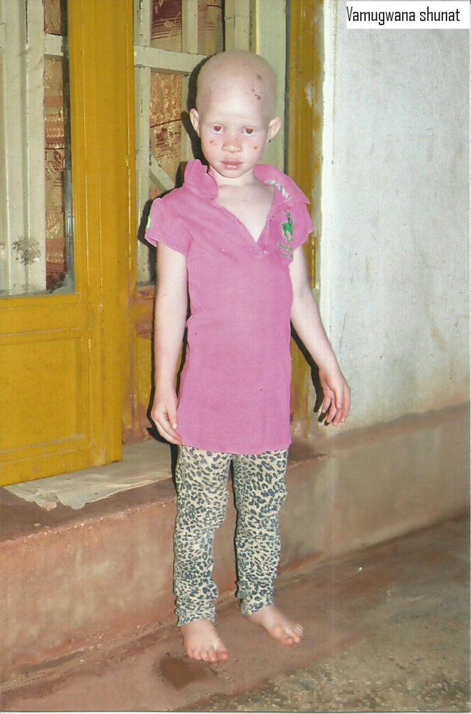 Build a School for 200 Children with Albinism