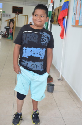 Nervous but yet excited with his new prosthesis