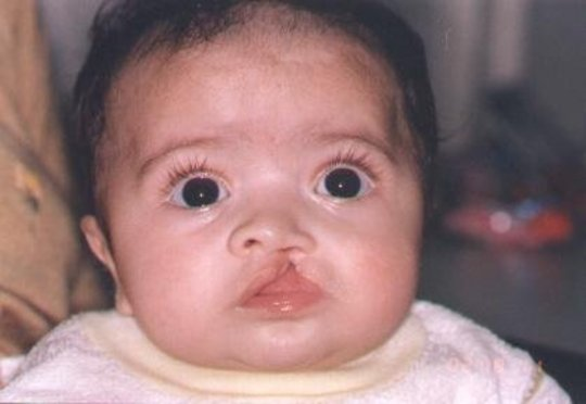 Free Cleft Surgery for 400 Poor Children in Brazil