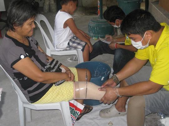 Prosthetic Fittings