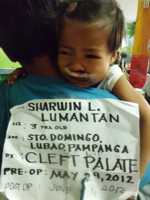cleft palate screening