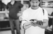 High-tech prosthetics for 75 Guatemalan amputees