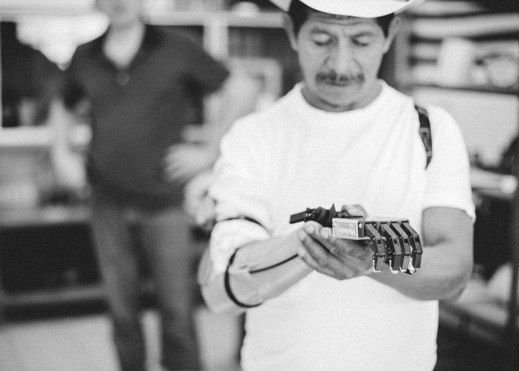 High-tech prosthetics for 75 Guatemalan amputees
