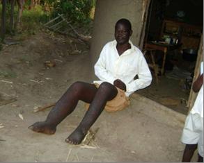 Simiyu's legs were painfully swollen