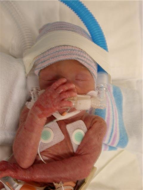 Photos From Help America S Premature Foster Care Infants