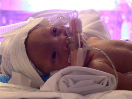 Our Tiny Ones In Our NICU...