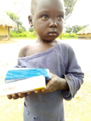 Baby with soap and scabies cream provided by us