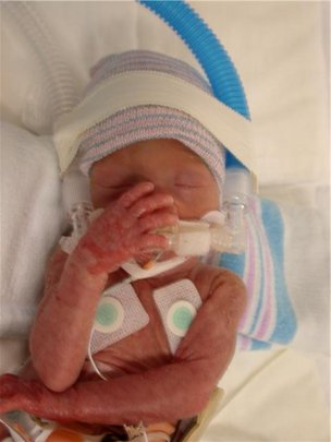 Early Intervention for Preemies