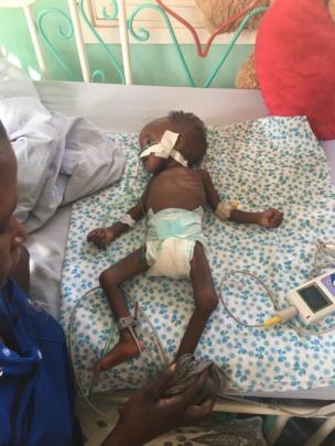 3 months old malnourished Hope on oxygen on 14.01