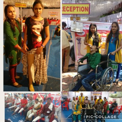 Free ProstheticLegs given to304 patients lastweek