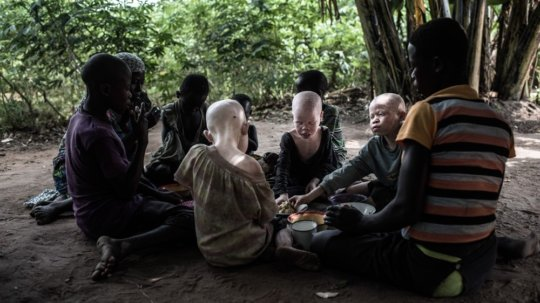 Improving the lives of People with Albinism