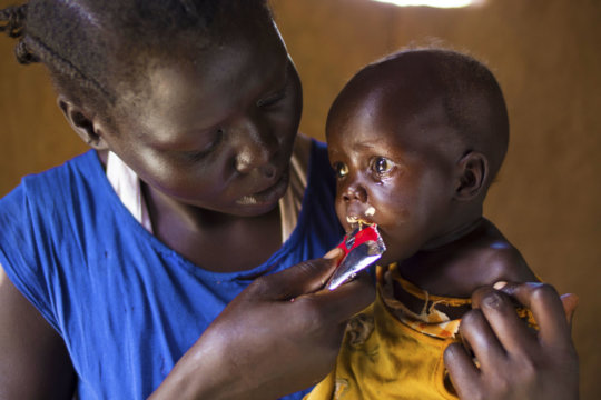 A child being fed RUTF by her mother (South Sudan)
