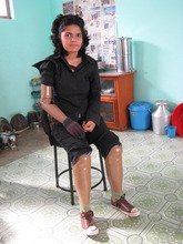 The gift of artificial limbs