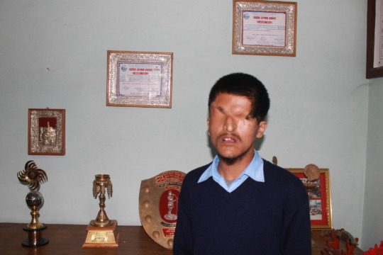 Student in the disabled school program