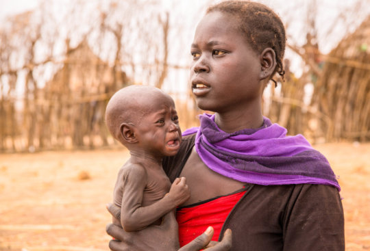 the causes of famine in africa Rather, research on the history of famine shows that several factors typically contribute to a societys or regions vulnerability to starvation, and that some of the causes of famine have changed significantly over the past century.