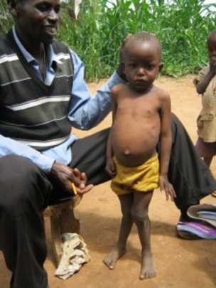 Wambua with malnutrition and rickets