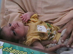 Father and his malnourished child, Swabi Camp