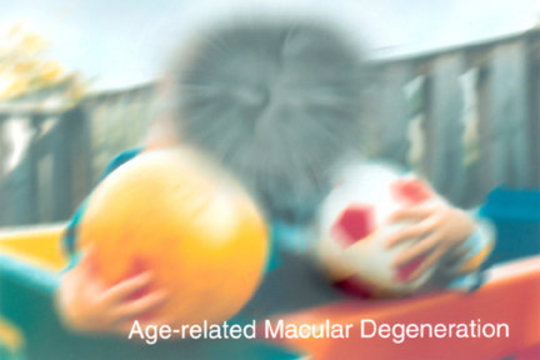 Vision with Macular Degeneration