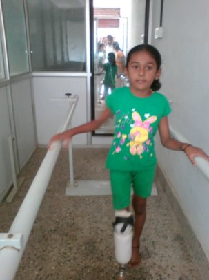Nithyasiri undergoing therapy with the prosthesis
