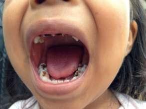 Dental challenge - decay of kids' teeth