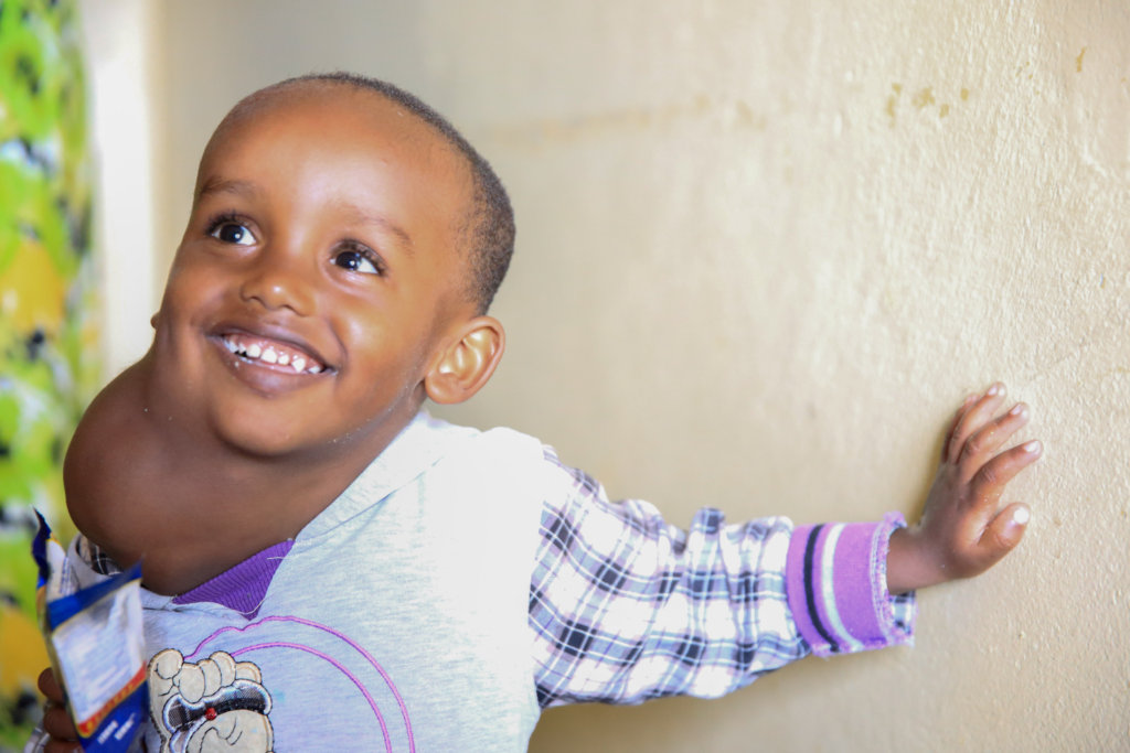 Support Facial Surgery for 50 Ethiopian Children