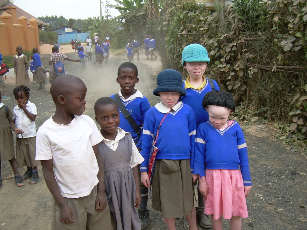 Save a Ugandan albino child from Skin Cancer