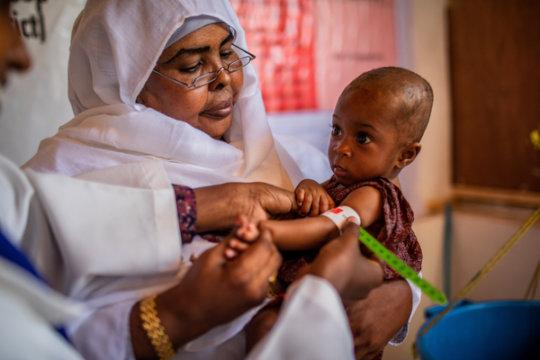 Treating a malnourished child in Somalia