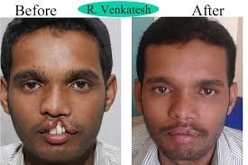 FREE OF COST CLFT LIP PLATE SURGERY OPERATION