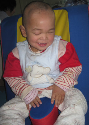 FangFang after treatment