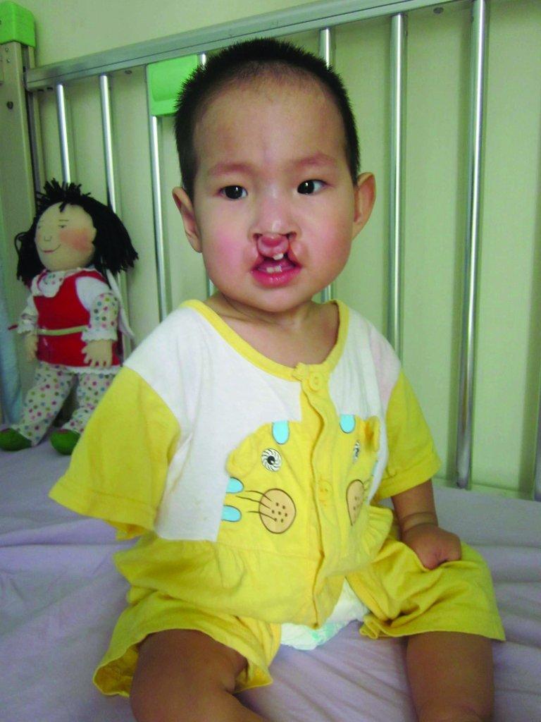 HuiJun before surgery
