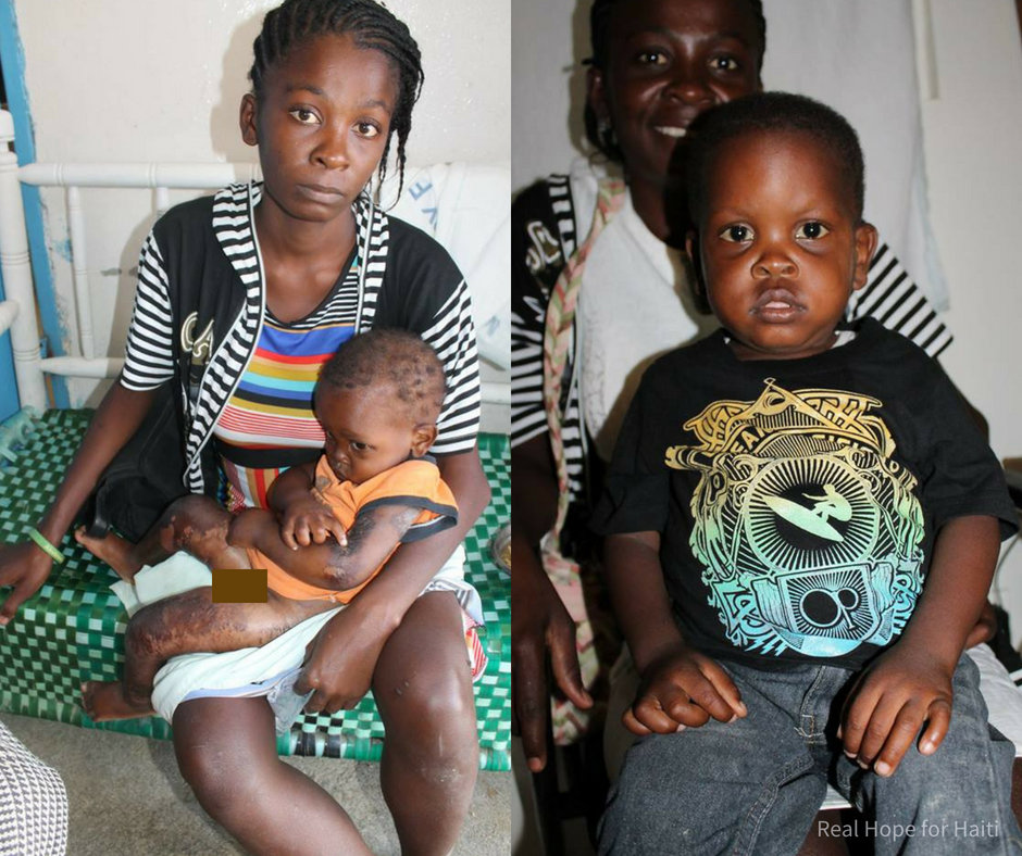 Woodensky, before & after malnutrition treatment