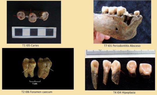 Examples of pathologies in teeth being studied