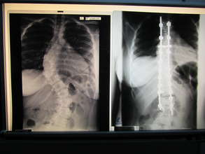 Sharena's before and after x-ray