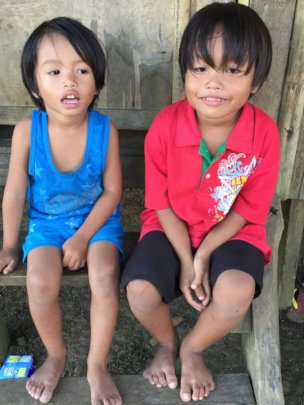 Feeding 300 Severely Stunted Children