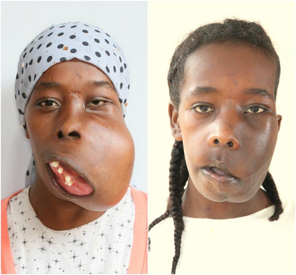 Support A Facial Surgery...Transform a Life!