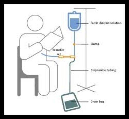 DIY Dialysis